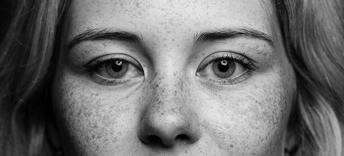 Project 53 – week twentythree – freckles